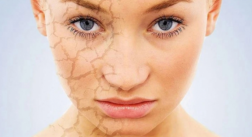 10 remedies for dry skin