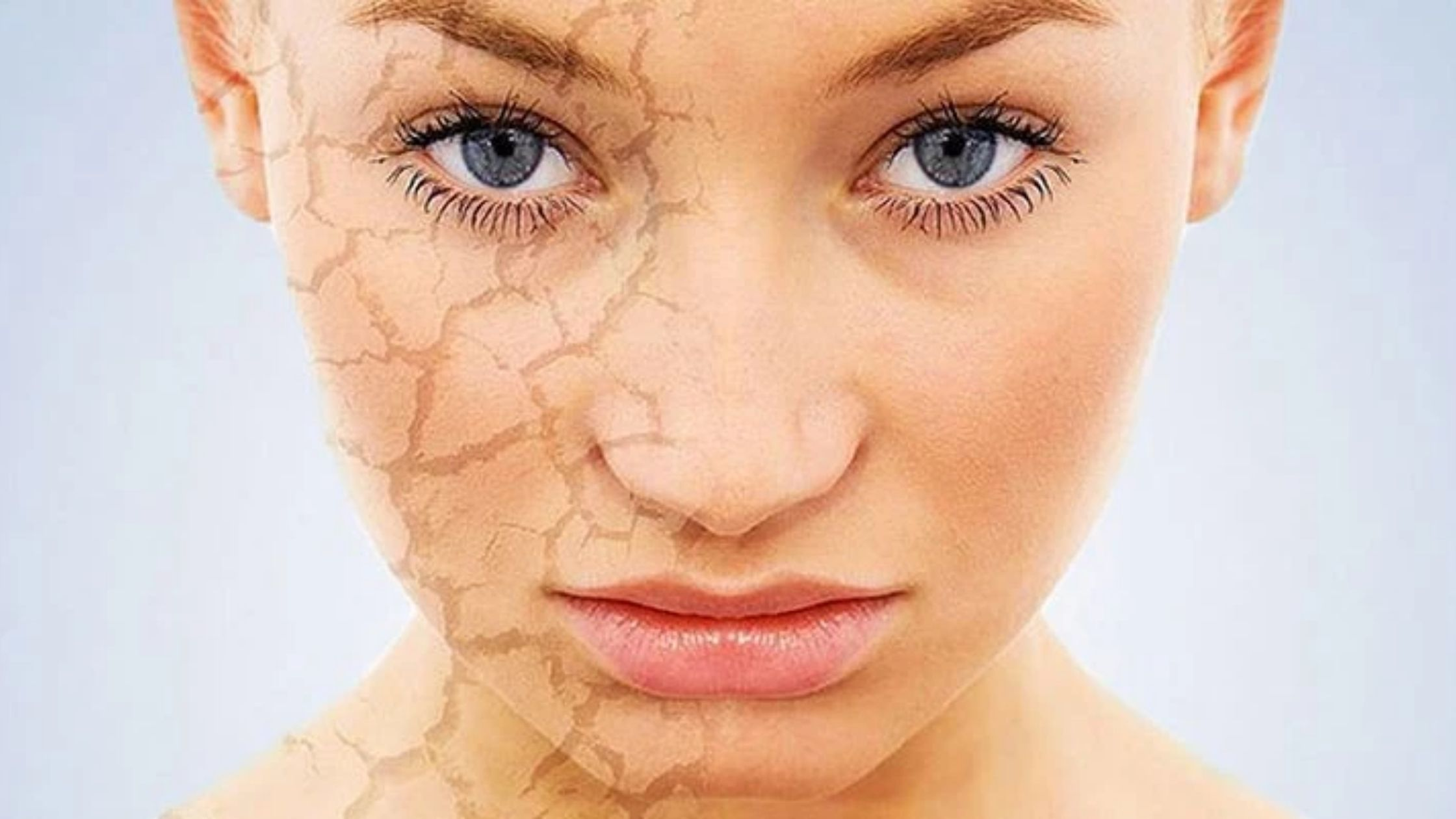 Dry skin on your face? Best Remedies!